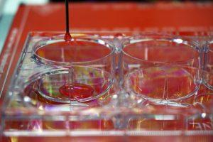 """GRA009. MADRID, 23/01/2017.- Fotografía facilitada por la Universidad Carlos III de Madrid (UC3M), de la bioimpresora 3D creada por investigadores de dicha institución, del Centro de Investigaciones Energéticas, Medioambientales y Tecnológicas (CIEMAT) y del Hospital General Universitario Gregorio Marañón (Madrid), en colaboración con la empresa BioDan Group, capaz de crear piel humana """"totalmente funcional"""", apta para ser usada en investigación, probar productos cosméticos y, en un futuro, ser trasplantada a pacientes. En lugar de cartuchos con tintas de colores, se utilizan jeringas con distintos componentes biológicos: células, proteínas, factores de crecimiento y andamiajes (estructuras en las que se integran las proteínas para dar forma al tejido), explica a EFE el profesor del departamento de Bioingeniería e Ingeniería Aeroespacial de la UC3M, José Luis Jorcano. EFE/ ***SOLO USO EDITORIAL***"""